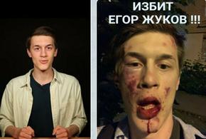 Критик на Путин е тежко ранен при нападение в Москва