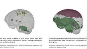 Снимки показаха как мозъкът се адаптира към живот в космоса